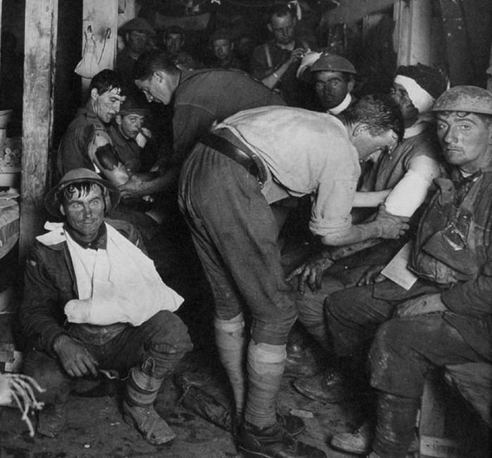 Shell shock image of World War I troops