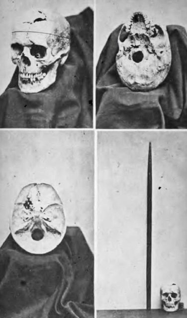 Phineas gage skull injury and tamping iron