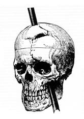 Phineas gage skull injury