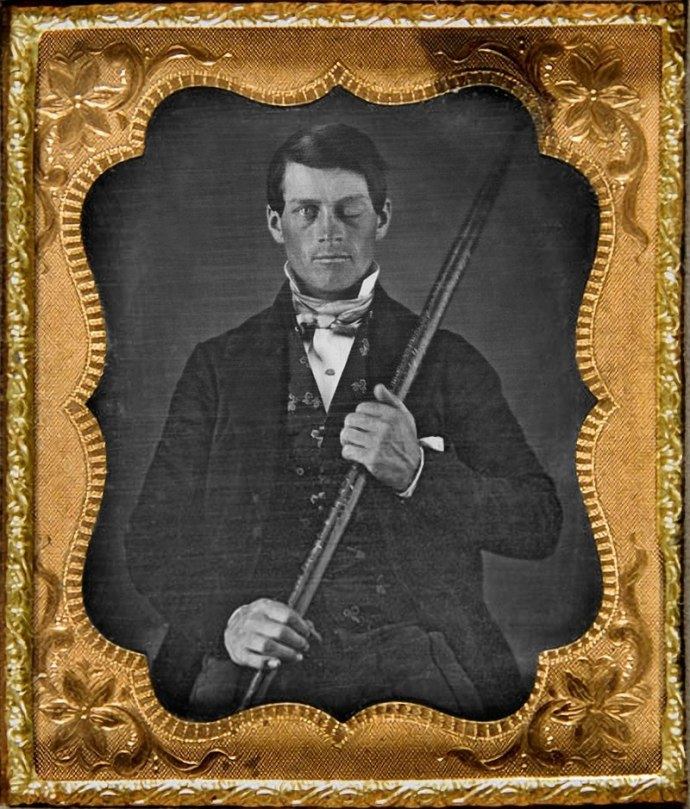 Phineas Gage and the iron rod