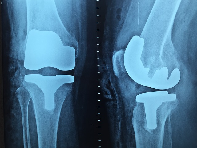 Kneecaps after an X ray