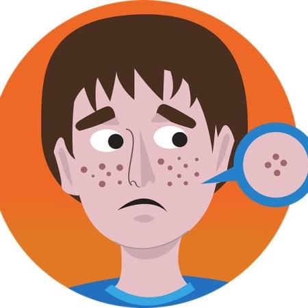 A boy with acne